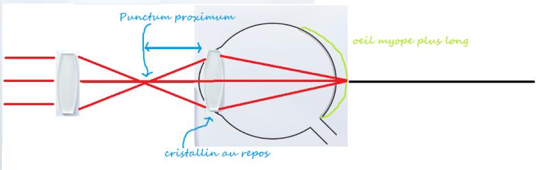 Distance Focale Du Cristallin De Loeil Myope Au Repos La